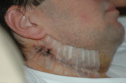 My neck 4 days after surgery
