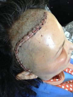 Craniotomy Incision