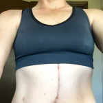 Whipple scar
